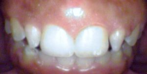 Case by Dr. Khetarpal : Before Image